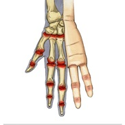 Medical Illustration portfolio item
